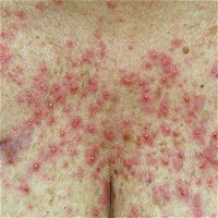 Dermatologic Care in Oncology and Patterns of Prophylaxis for EGFRi-Associated Skin Toxicity