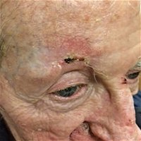 Multiple vs First Incidence of Cutaneous Squamous Cell Carcinoma and Estimation of Future Incidences