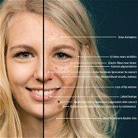 Face-Aging Mobile App–Based Intervention on Skin Cancer Protection Behavior
